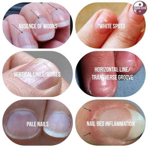 Speaking Of Healthy Nails our bodies are creations that are constantly
