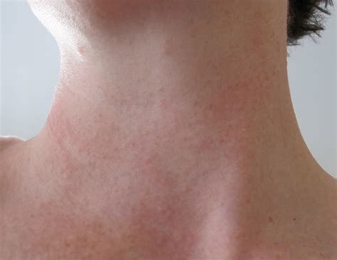 mold rashes on skin black rashes caused by mold pictures to pin on pinterest