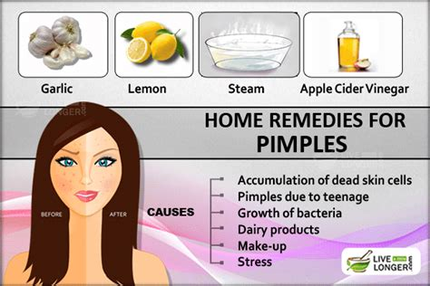 how to get rid of pimples try these effective home remedies