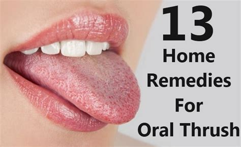 13 most simple home remedies for thrush search