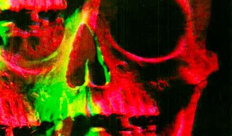 imagenes sensoriales visuales cromaticas las alucinaciones en brujer 237 a