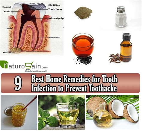 9 best home remedies for tooth infection to prevent toothache