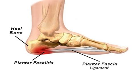 Planters Faceitis by Plantar Fasciitis Physiofix