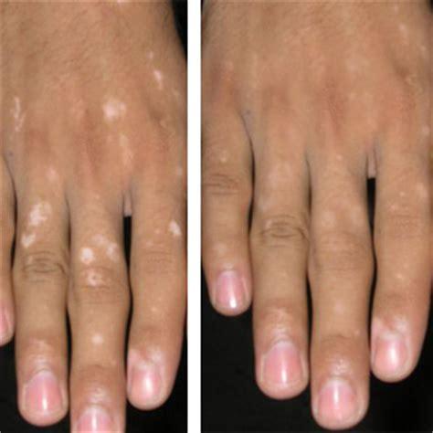 nipple tattoo vitiligo before after vitiligo green