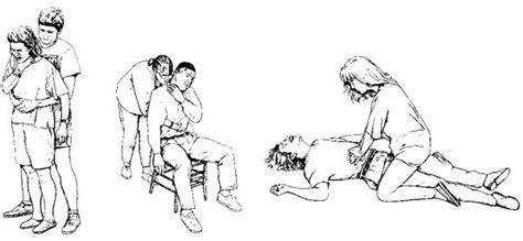 heimlich maneuver aid class notes