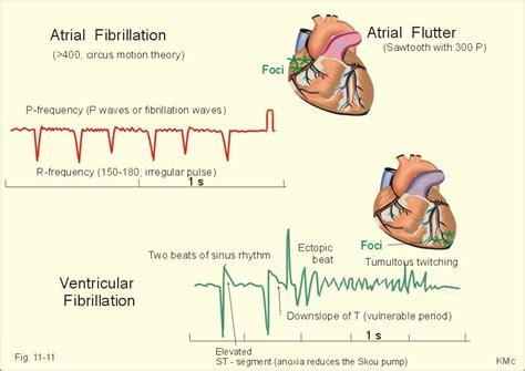 atrial fibrillation diagram ventricular fibrillation clinical manifestation