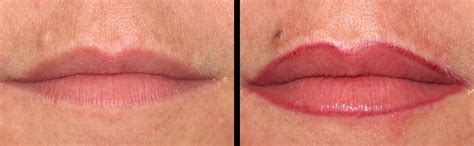 tattooed lip liner before and after picture of lip liner tattooed on after