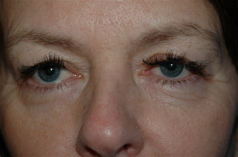 eyelash extensions 50 year old warning eyelash extensions gold coast