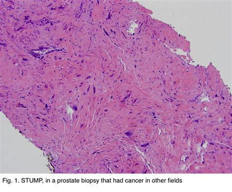 Hhf35 Pathology Outlines by Pathology Outlines Stromal Tumor Of Uncertain Malignant Potential Stump