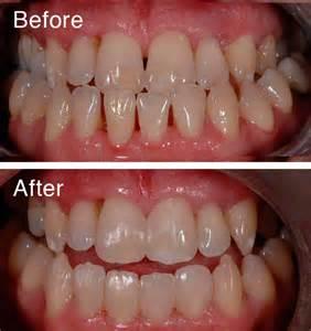 dental bonding at home clarence house dental practice gloucester dentist and