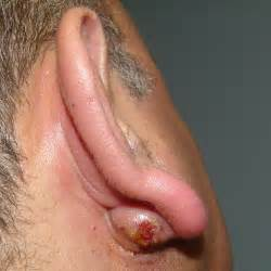 infected post auricular sebaceous cyst otolaryngology