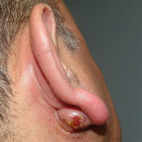 sebaceous cyst picture infected post auricular sebaceous cyst otolaryngology houston