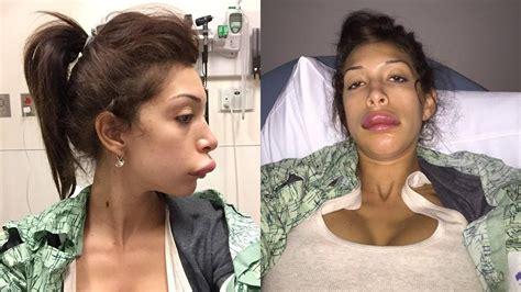 worst celeb plastic surgery pictures bad celebrity plastic surgery orlando sentinel