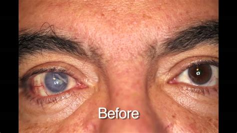 eye color changing contacts custom color contacts prosthetic before and afters