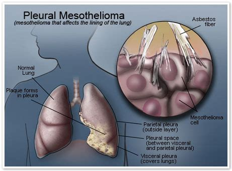 Pleural Mesothelioma Stages by Mesothelioma Pictures Mesothelioma Cancer Alliance Photo