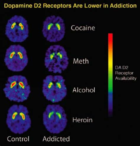 Cocaine For Opiate Detox by The Influence Of Addictive Substances On Brain Abuse