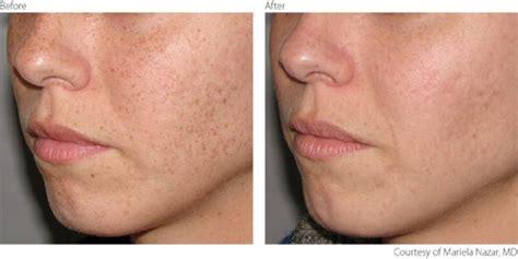 ipl pigmentation removal pigmentation removal laser lumenis