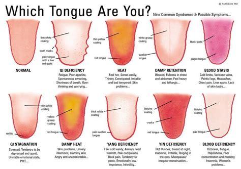 White Coated Tongue Symptom » Home Design 2017