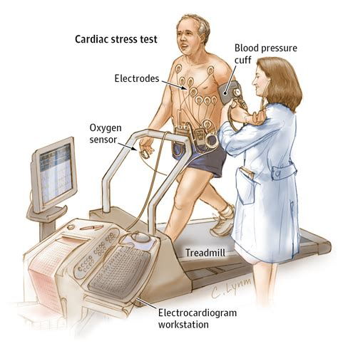 stress test should i an exercise stress test cardiology jama
