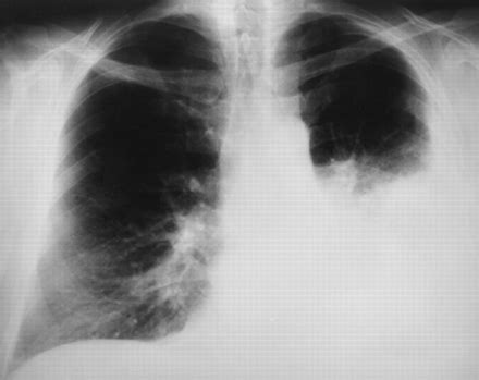 sle chest x report pleuropulmonary manifestations of systemic lupus