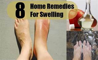home remedies for leg crs during pregnancy 8 swelling home remedies treatments and cure search