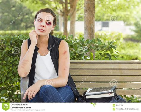 woman on bench bruised battered and depressed young woman on bench stock