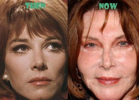 robin wright nose job 211 best images about celebrity before after on pinterest