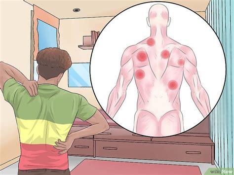 nudo muscular espalda 3 formas de eliminar los nudos de la espalda wikihow