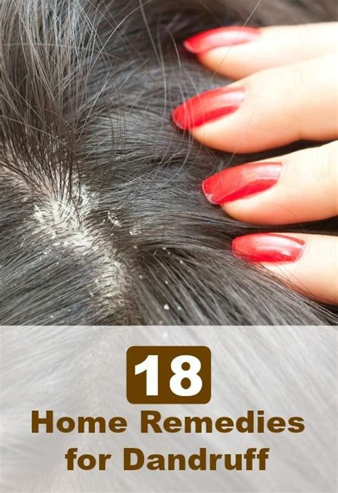 best cure for dandruff hair routine how to get rid of dandruff models picture