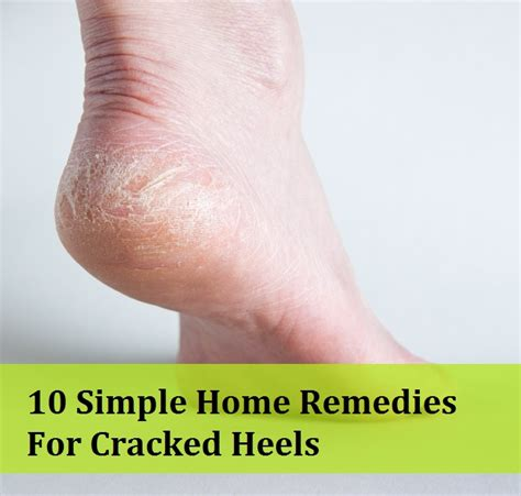 home remedies for cracked heels texila connect