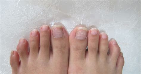 My Big Toe Discovery brittle nails with ridges awesome nail