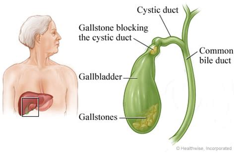 gallstones healthwise medical information on emedicinehealth gallstones
