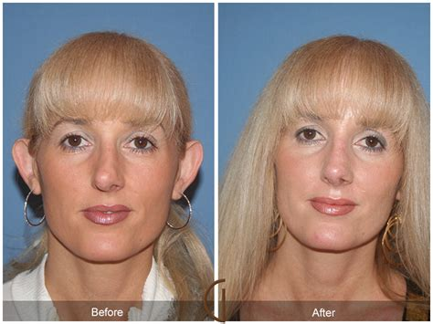 photo gallery before and after cosmetic surgeon in the before after rhinoplasty 38 cosmetic surgeon orange county