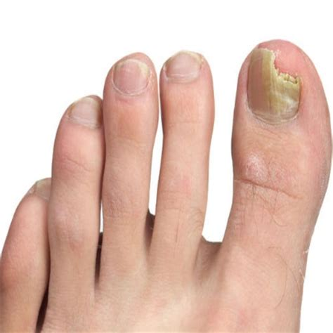 Toe Nail Care by 9 Home Remedies For Toe Nail Fungus Treatment And Cure