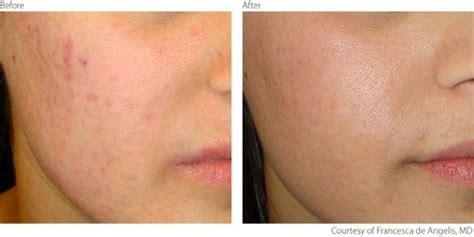 light scar treatment clinical evidence of lumenis acne scar treatment laser