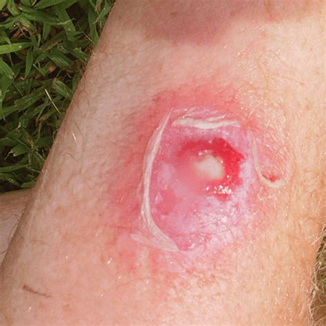 skin infection how to get rid of a skin infection how to get rid of stuff