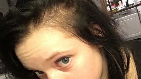 haartransplantation wann fallen die haare aus bald ganz kahl btn w 252 nsche fallen die haare aus