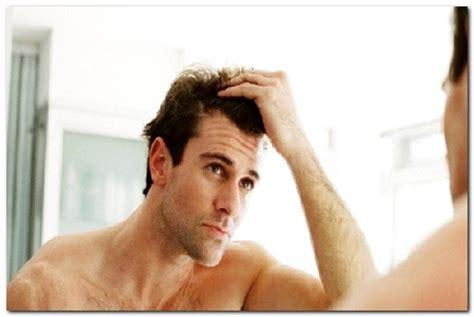 Mencegah Botak Dan Rambut Berminyak Dan Rontok cara mengatasi mencegah rambut rontok kering pada pria tipsmerawatrambut id