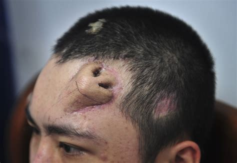 chinese doctor builds new nose on man s forehead