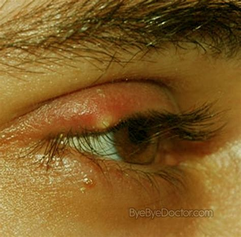 eye stye stye eye symptoms causes pictures treatment prevention