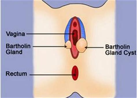 ruptured gland related keywords suggestions for infected bartholin cyst