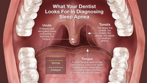 How Sleep Apnea Can Hurt A Relationship by Diagnose How Is Sleep Apnea Diagnosed