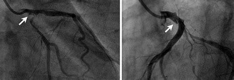 sfinterotomia laterale interna post operatorio disecci 243 n coronaria espont 225 nea post parto reporte de un