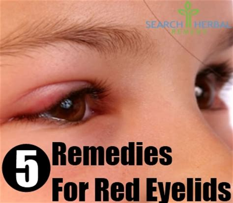 5 home remedies for eyelids treatments cure for