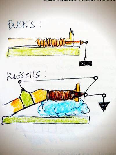buck traction bucks vs traction nursing procedures