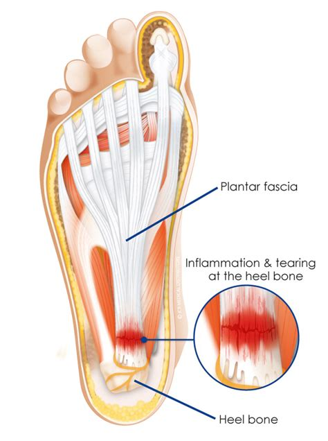 Planter Fascitis Treatment by Heel Spurs And Plantar Fasciitis Treatment In Augusta Ga