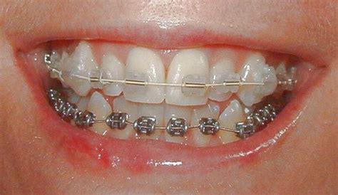 clear braces with color white braces color colors braces braces colors