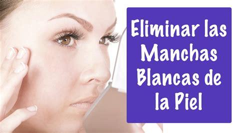 como eliminar manchas blancas en la piel y vitiligo como eliminar el pa 209 o