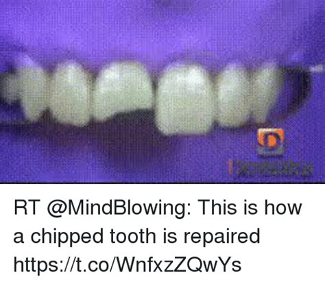Chipped Tooth Meme - 25 best memes about chipped tooth chipped tooth memes