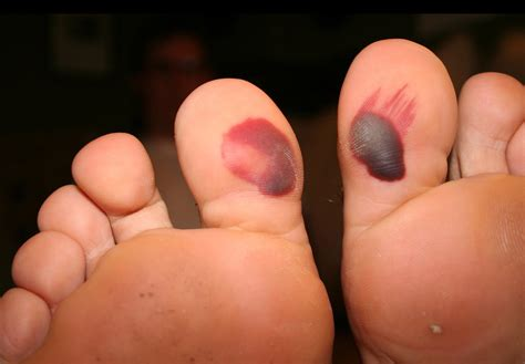 blood blister on blood blisters do s and dont s blister prevention